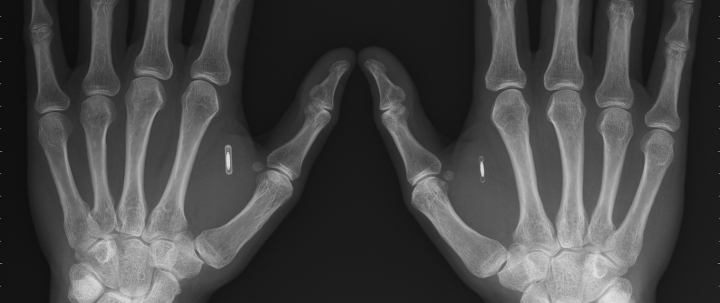 chips implanted in hand