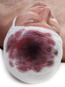 Bandage on human brain concussion